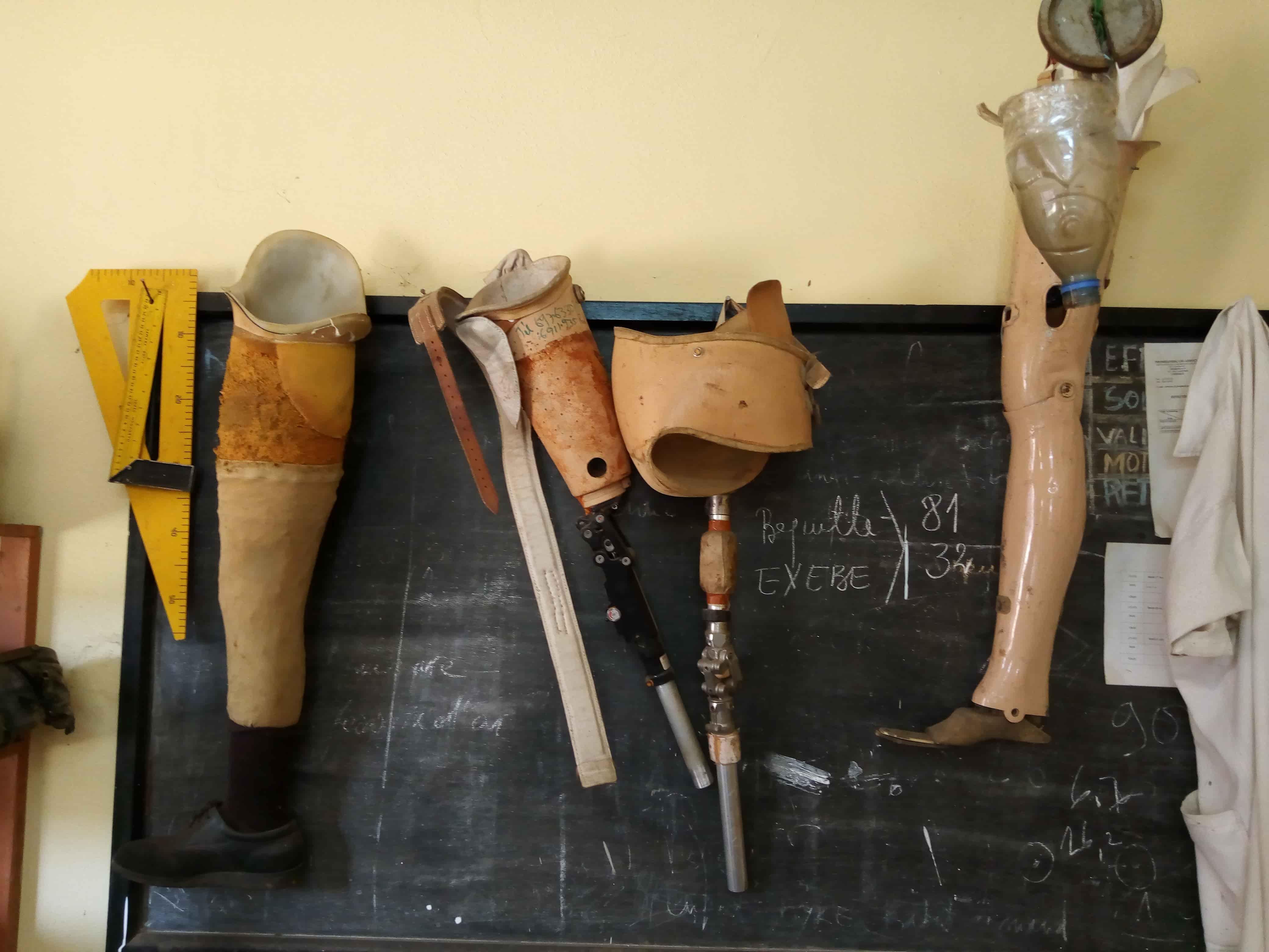 Un atelier d'appareillage orthopédique